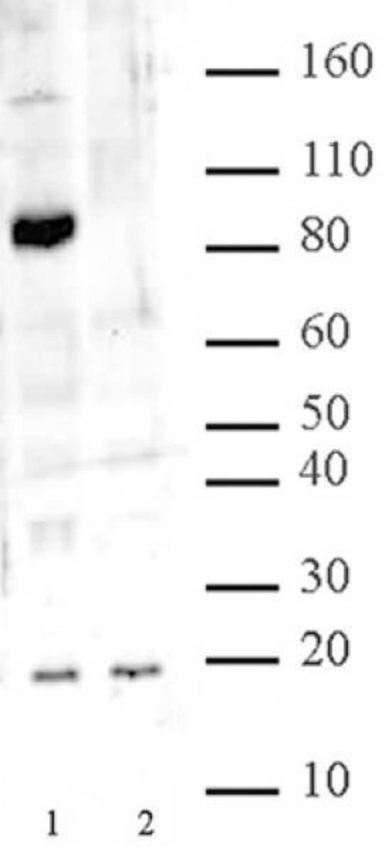 JARID1C / KDM5C Rabbit anti-Yeast, Unconjugated, Polyclonal, Active Motif:Antibodies:Primary