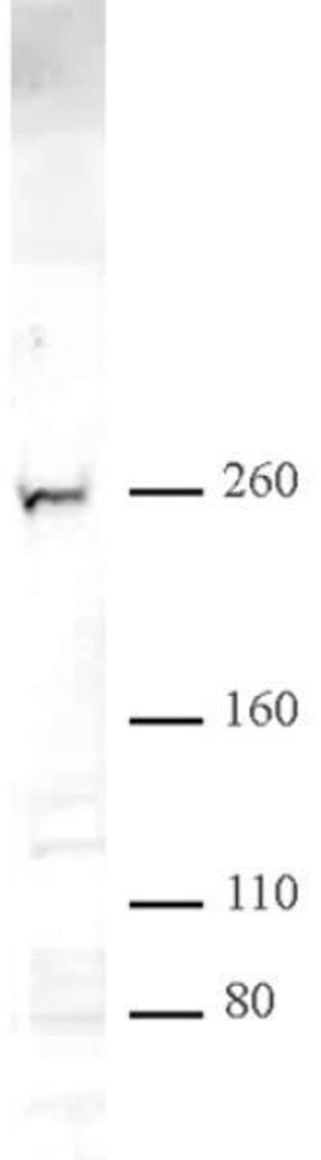CHD2 Rabbit anti-Human, Unconjugated, Polyclonal, Active Motif:Antibodies:Primary