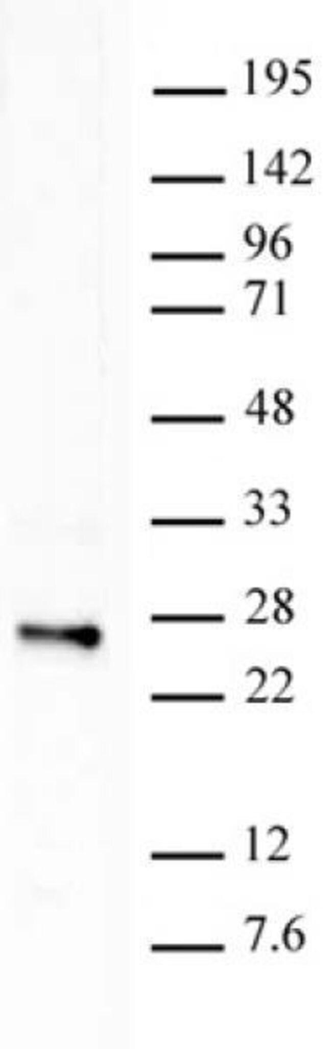 Histone H2BK120ub1 Mouse anti-Human, Clone: 56, Active Motif:Antibodies:Primary