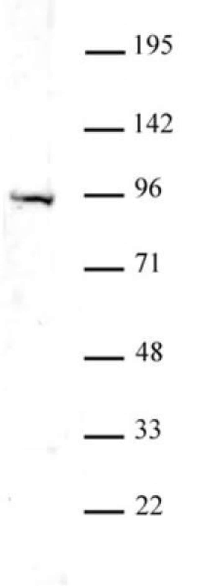 Uhrf1 Rabbit anti-Human, Unconjugated, Polyclonal, Active Motif:Antibodies:Primary