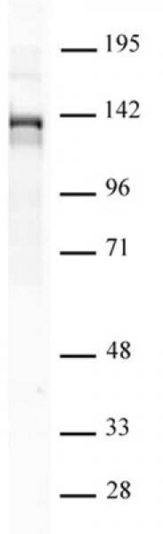 PHF8 Rabbit anti-Human, Unconjugated, Polyclonal, Active Motif:Antibodies:Primary