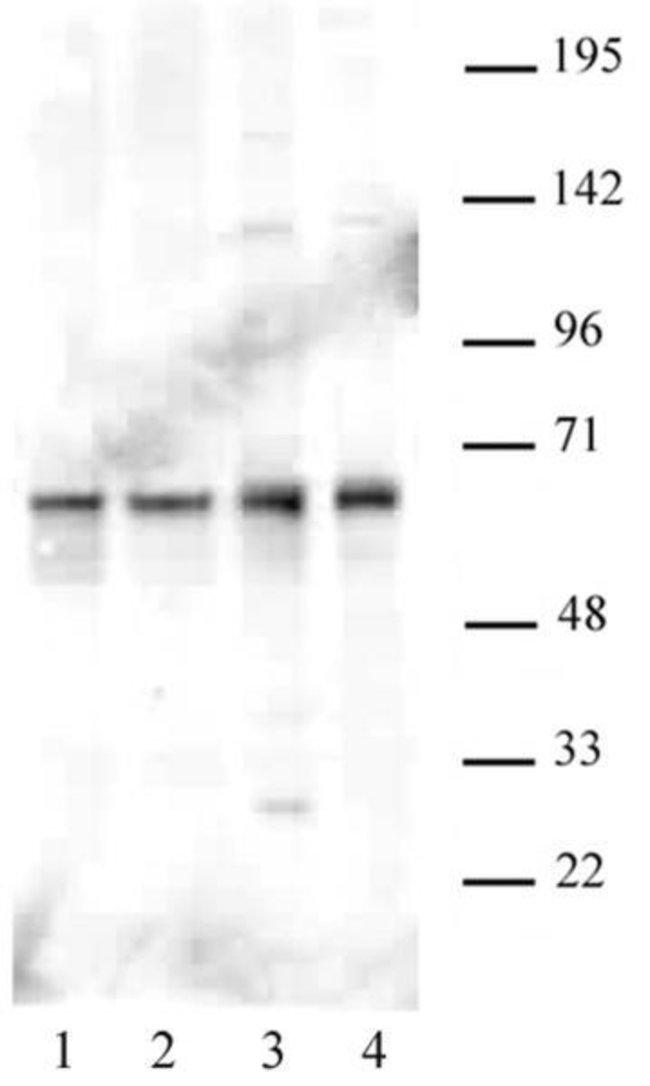 PARP-2 Rabbit anti-Human, Unconjugated, Polyclonal, Active Motif:Antibodies:Primary