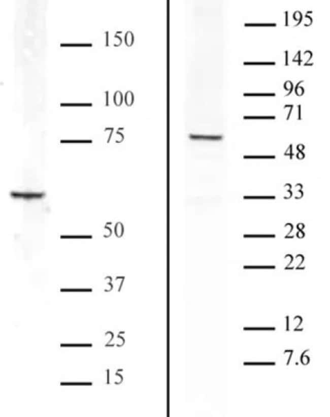 Bcl3 Rabbit anti-Human, Unconjugated, Polyclonal, Active Motif:Antibodies:Primary