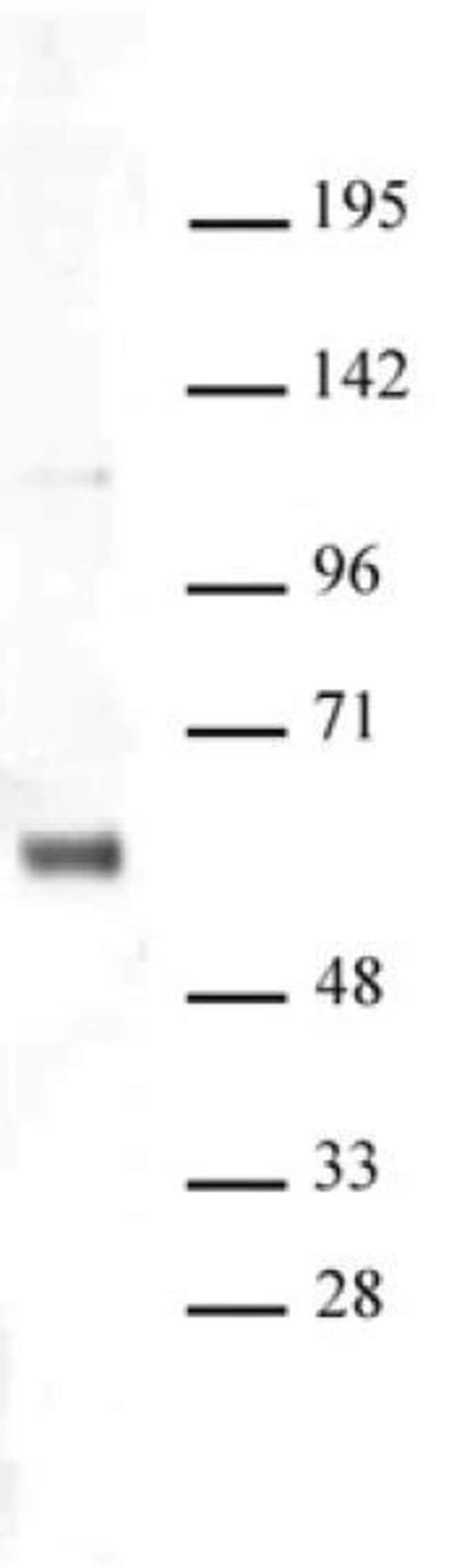 SNF5 Rabbit anti-Human, Unconjugated, Polyclonal, Active Motif:Antibodies:Primary