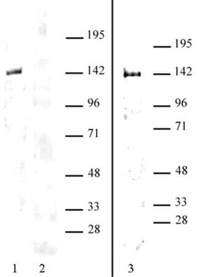 HDAC9 Rabbit anti-Human, Unconjugated, Polyclonal, Active Motif:Antibodies:Primary