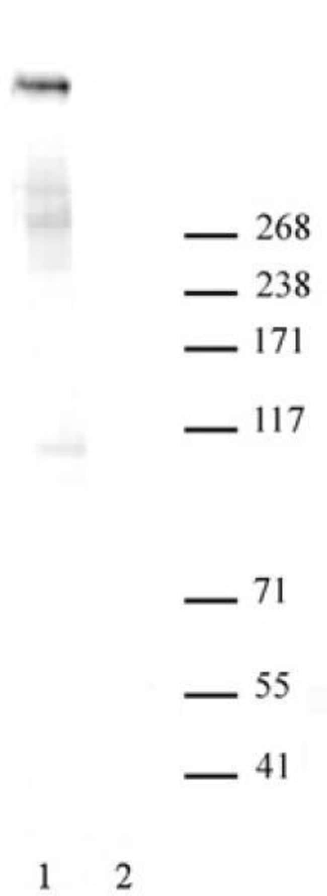 Ki-67 Rabbit anti-Human, Unconjugated, Polyclonal, Active Motif:Antibodies:Primary