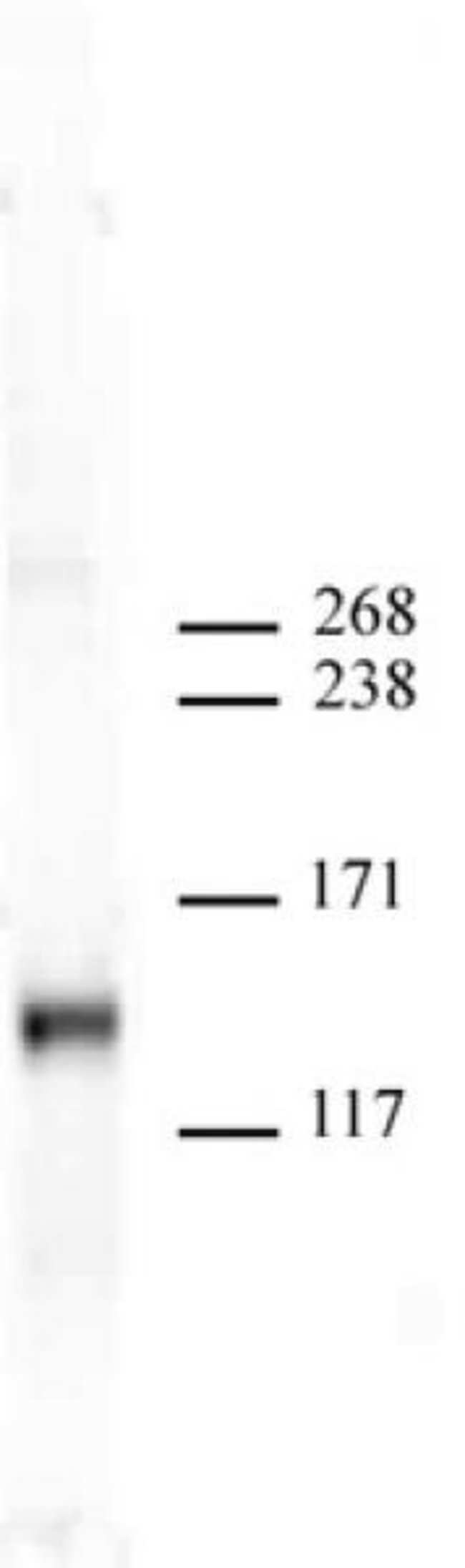 JMJD2A Mouse anti-Human, Mouse, Clone: N154/32, Active Motif:Antibodies:Primary