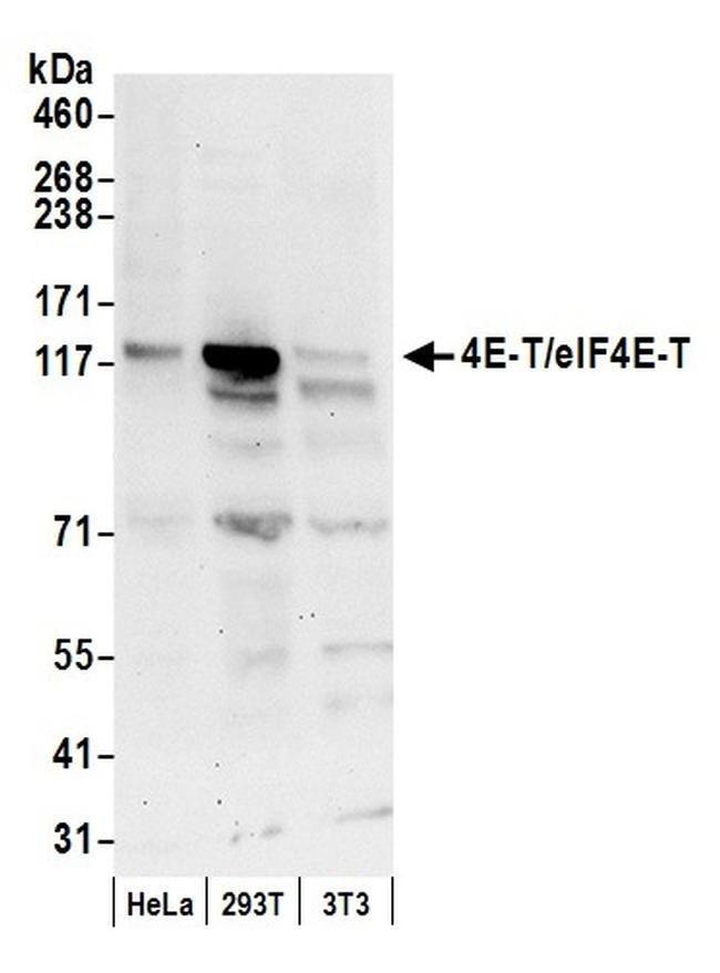4E-T/eIF4E-T, Polyclonal, Bethyl Laboratories 100 μL; Unconjugated:Antibodies