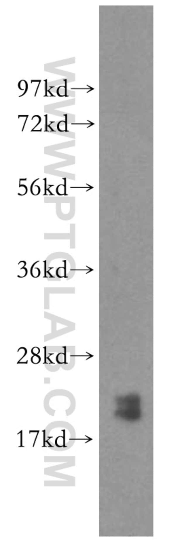PTRH2 Rabbit anti-Human, Mouse, Rat, Polyclonal, Proteintech 20 μL; Unconjugated voir les résultats