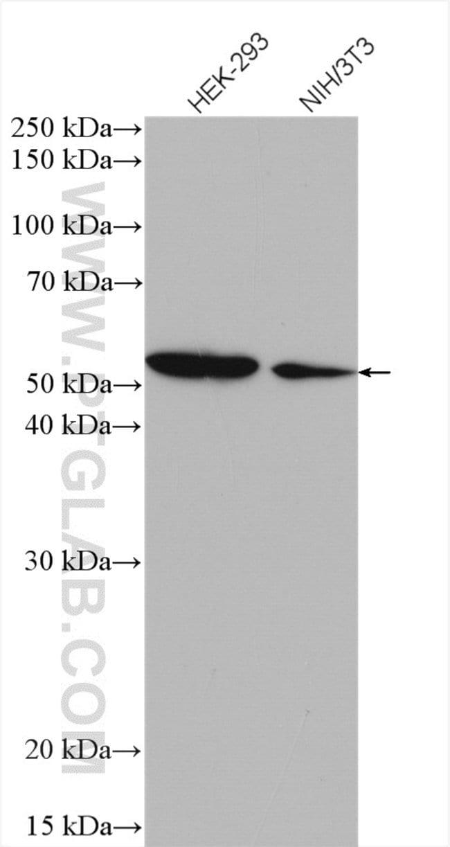 SPTLC2 Rabbit anti-Human, Mouse, Polyclonal, Proteintech 20 μL; Unconjugated voir les résultats