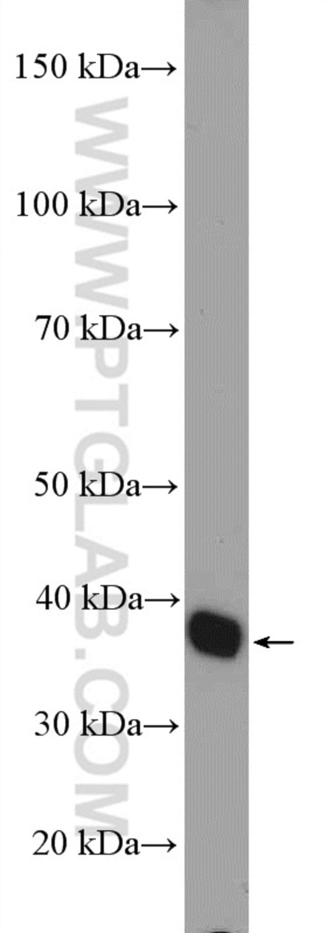 GRHPR Rabbit anti-Human, Mouse, Polyclonal, Proteintech 150 μL; Unconjugated Ver productos
