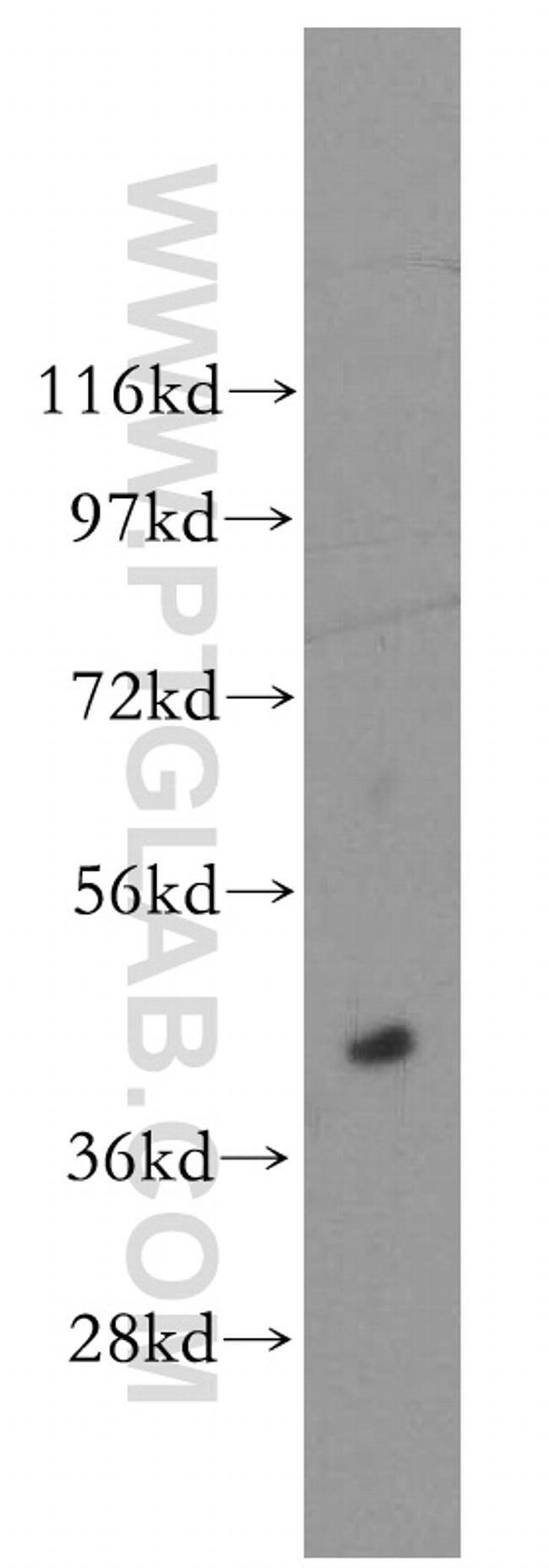 ACOT7L Rabbit anti-Human, Polyclonal, Proteintech 20 μL; Unconjugated Produkte