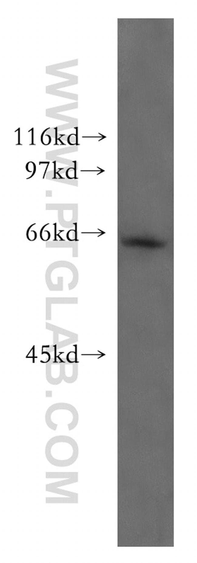 Mecr Rabbit anti-Human, Mouse, Polyclonal, Proteintech 20 μL; Unconjugated voir les résultats