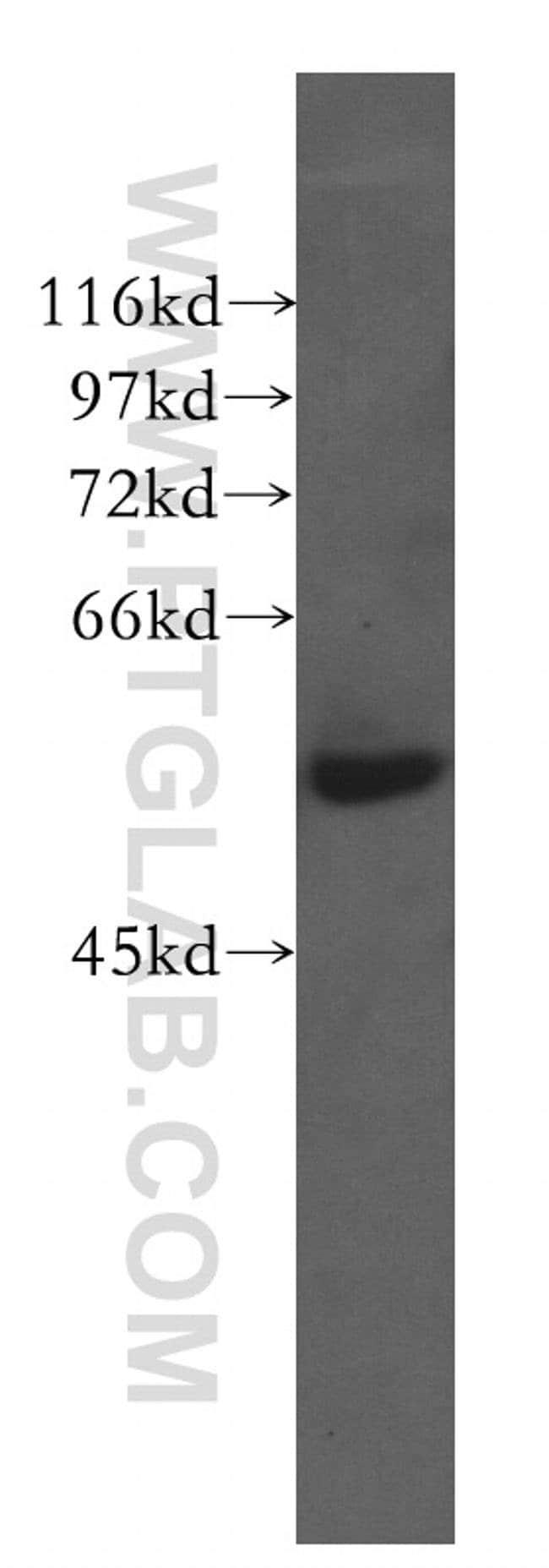 CTRP6 Rabbit anti-Human, Polyclonal, Proteintech 20 μL; Unconjugated Produkte