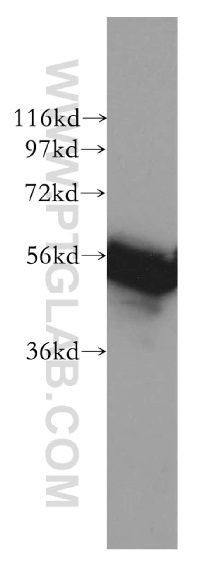 RAD23A Rabbit anti-Human, Mouse, Rat, Polyclonal, Proteintech 150 μL; Unconjugated Ver productos