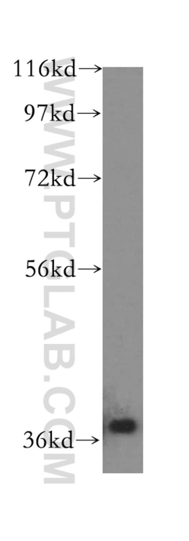 IkB alpha Rabbit anti-Human, Mouse, Polyclonal, Proteintech 150 μL; Unconjugated voir les résultats