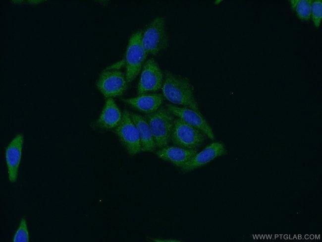 STAT4 Rabbit anti-Human, Mouse, Rat, Polyclonal, Proteintech 150 μL; Unconjugated Produkte