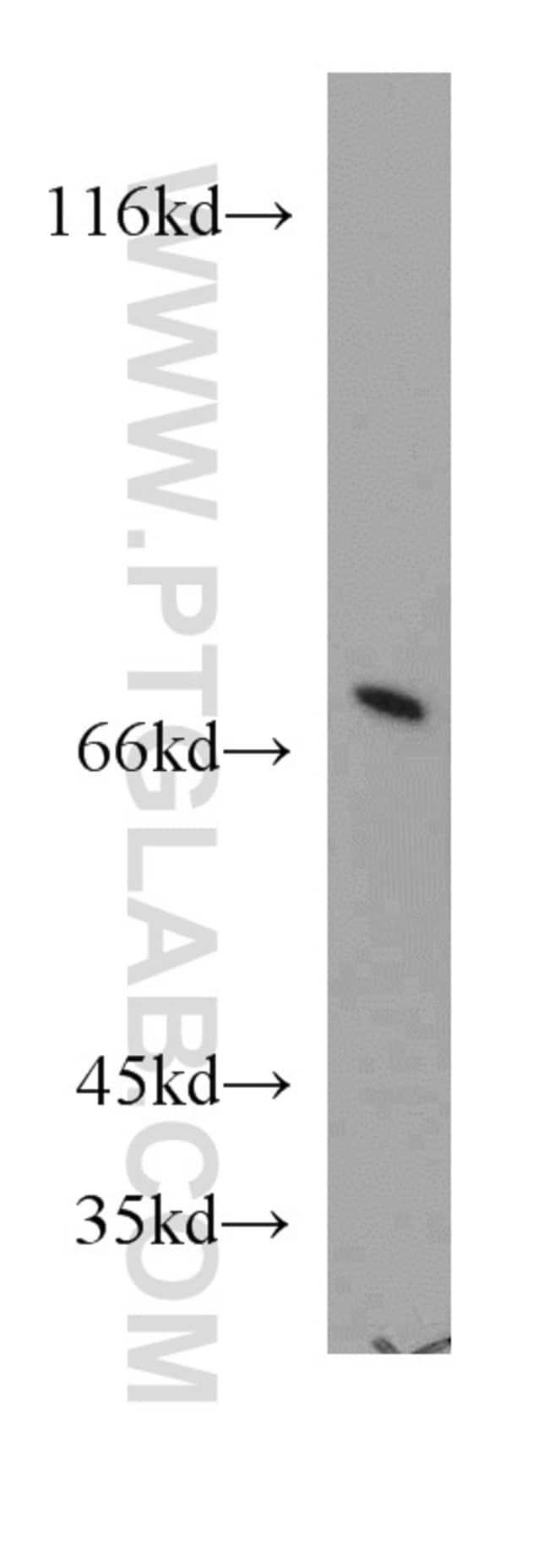 ATP6V1A Rabbit anti-Human, Mouse, Polyclonal, Proteintech 20 μL; Unconjugated Ver productos