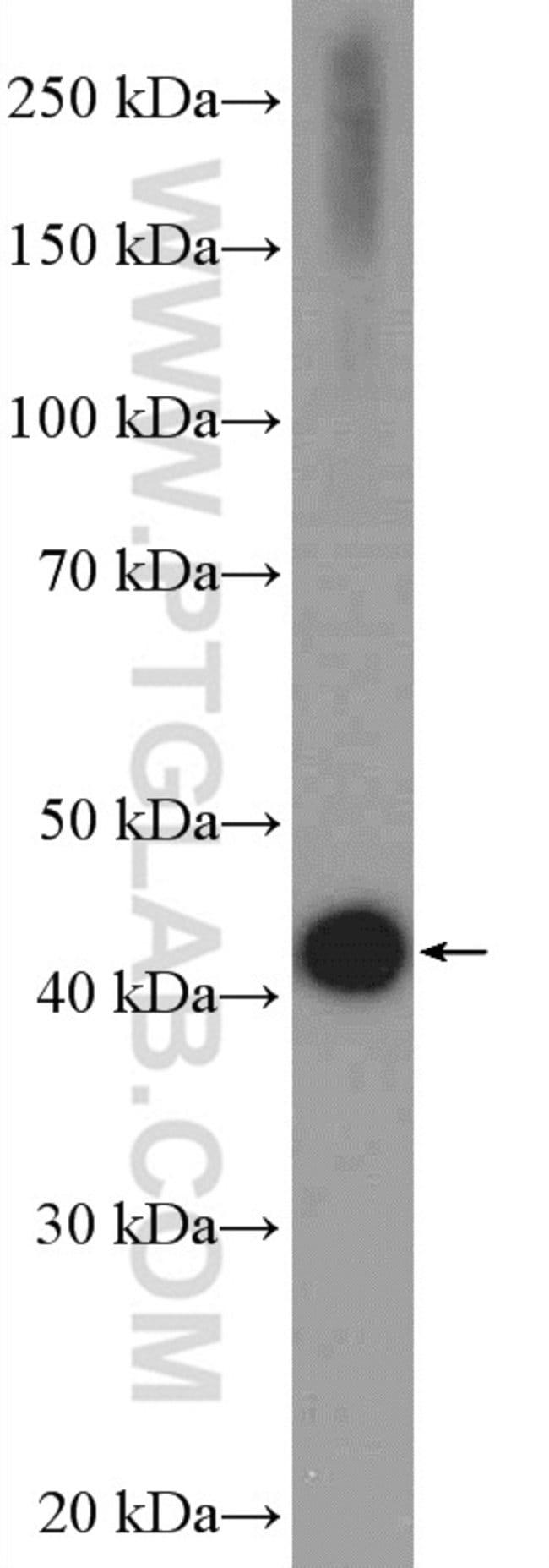 HTRA1 Rabbit anti-Human, Mouse, Rat, Polyclonal, Proteintech 150 μL; Unconjugated voir les résultats