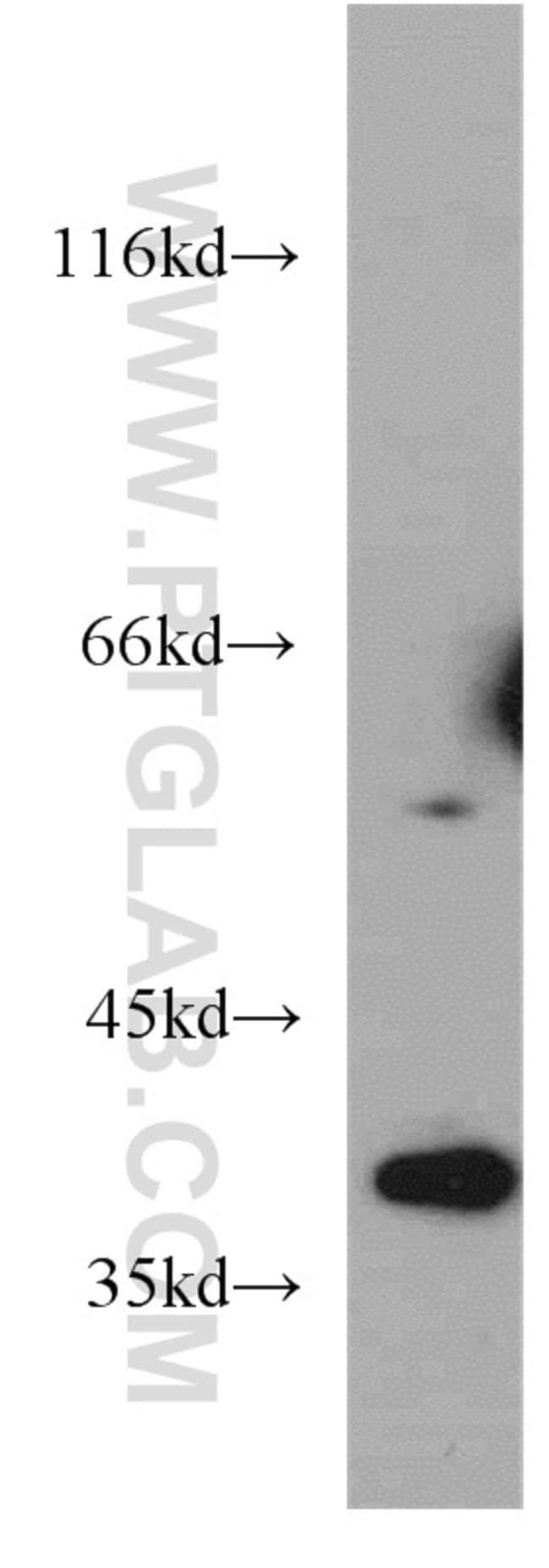 ELOVL4 Rabbit anti-Human, Mouse, Rat, Polyclonal, Proteintech 150 μL; Unconjugated Produkte