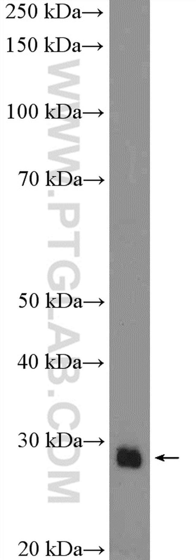 SOX21 Rabbit anti-Human, Mouse, Polyclonal, Proteintech 150 μL; Unconjugated voir les résultats