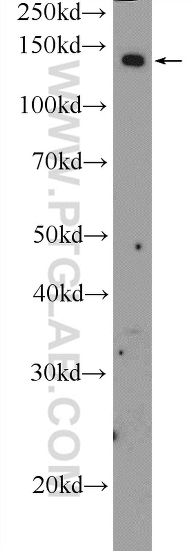 ADCY8 Rabbit anti-Human, Mouse, Polyclonal, Proteintech 150 μL; Unconjugated Produkte
