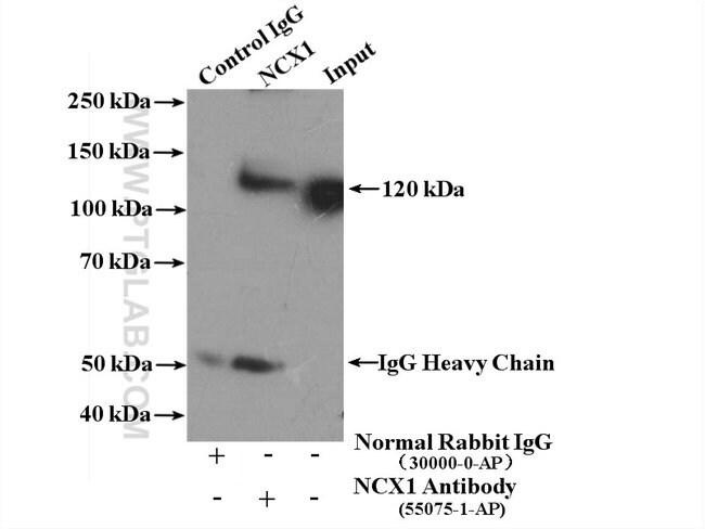 NCX1 Rabbit anti-Human, Mouse, Rat, Polyclonal, Proteintech 150 μL; Unconjugated voir les résultats