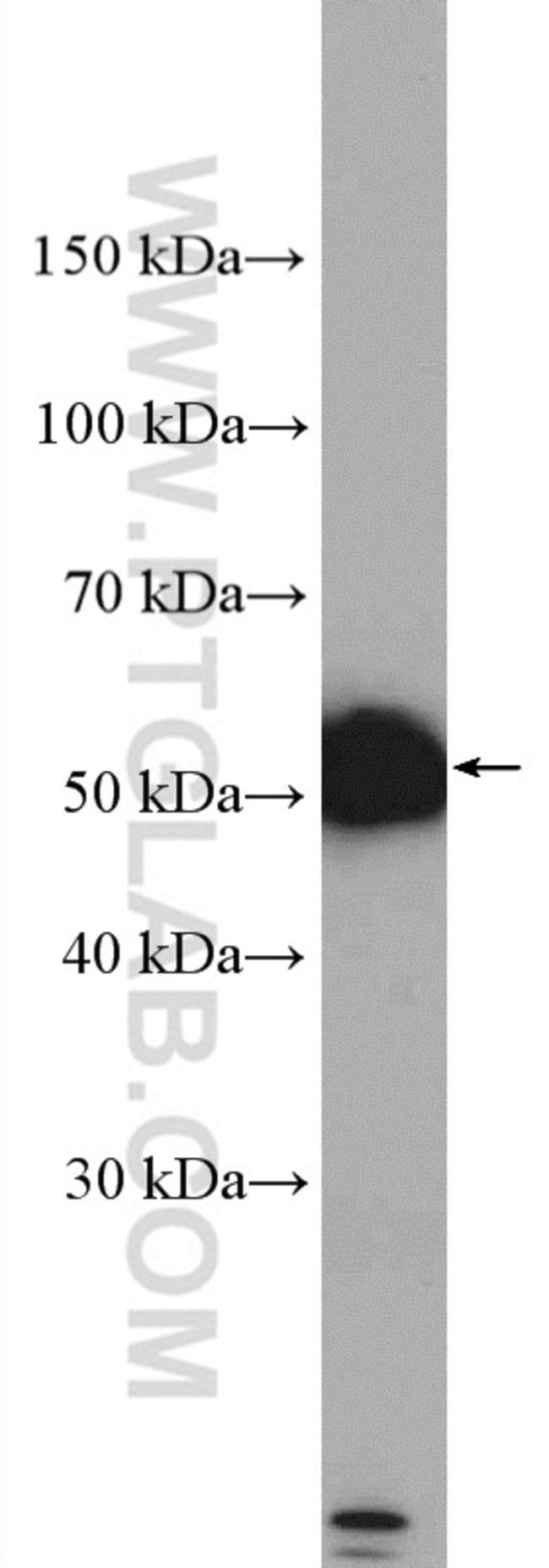 DRD2 Rabbit anti-Human, Mouse, Rat, Polyclonal, Proteintech 150 μL; Unconjugated Produkte