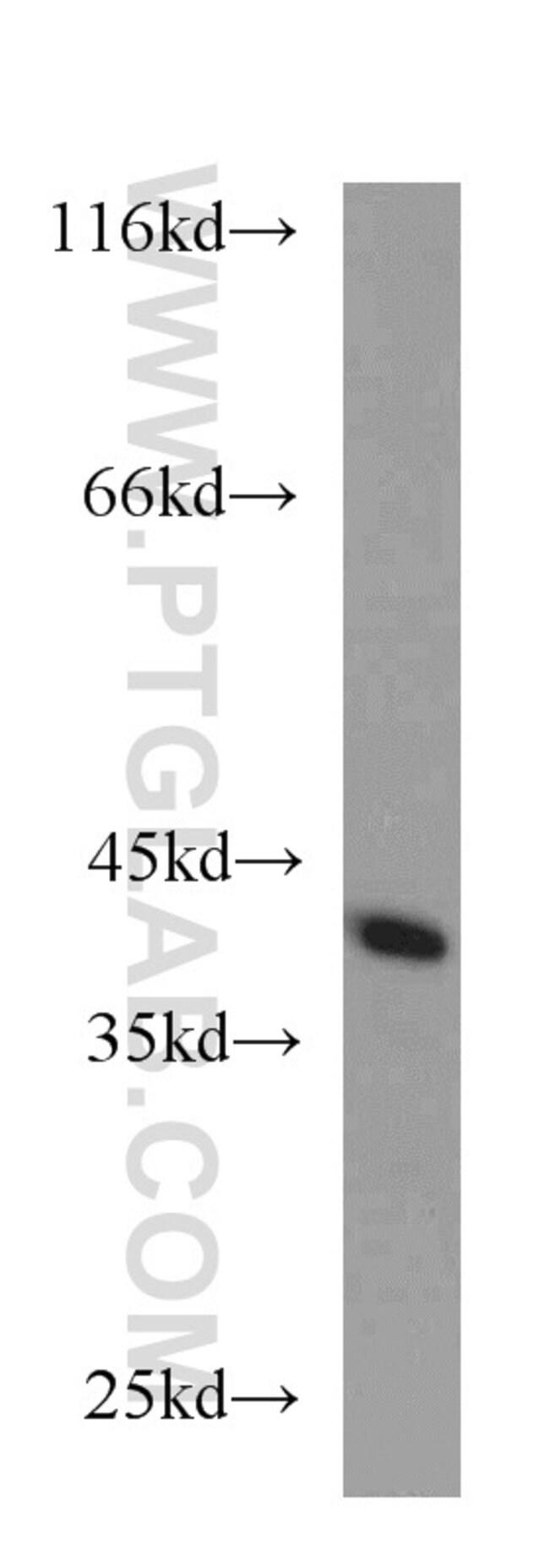 CDK3 Rabbit anti-Human, Mouse, Polyclonal, Proteintech 150 μL; Unconjugated voir les résultats