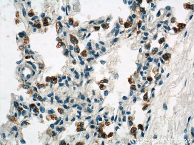 NOTCH3 Rabbit anti-Human, Mouse, Polyclonal, Proteintech 150 μL; Unconjugated Produkte