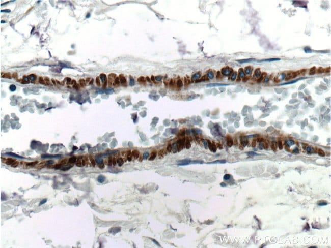 Alpha SMA Rabbit anti-Human, Mouse, Rat, Polyclonal, Proteintech 150 μL; Unconjugated Produkte
