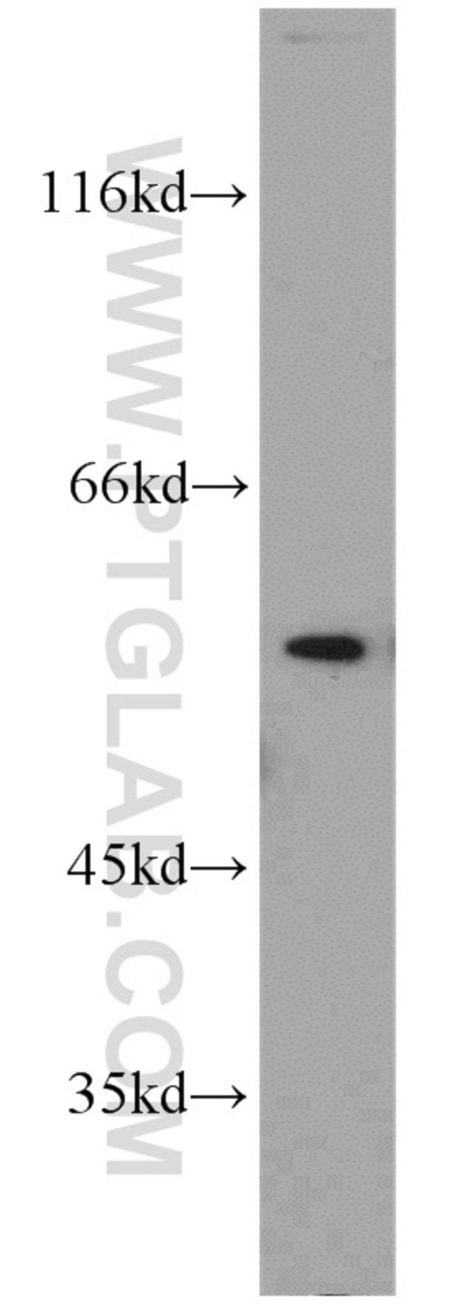 PPP3CB Rabbit anti-Human, Mouse, Rat, Polyclonal, Proteintech 150 μL; Unconjugated Produkte