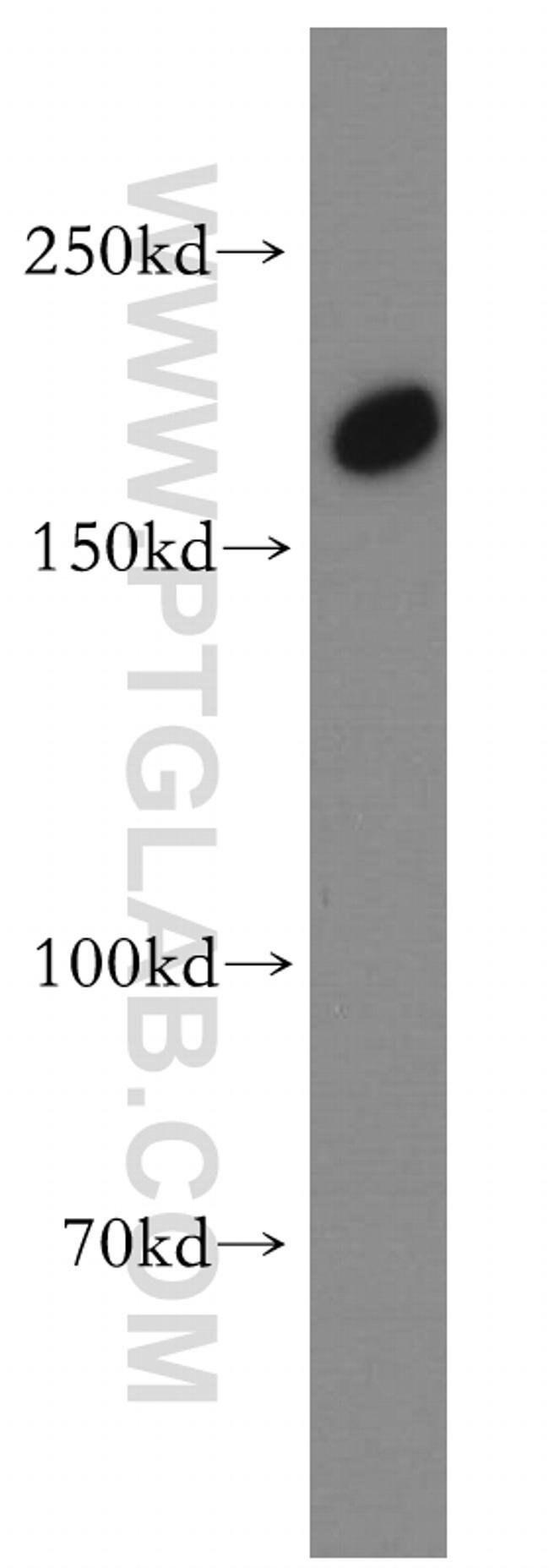 TULP4 Rabbit anti-Human, Mouse, Rat, Polyclonal, Proteintech 150 μL; Unconjugated Produkte