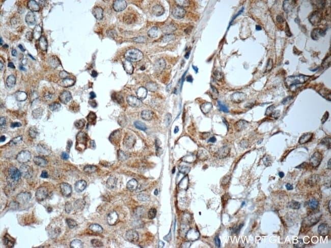 WNT5A/B Rabbit anti-Human, Mouse, Polyclonal, Proteintech 150 μL; Unconjugated Produkte
