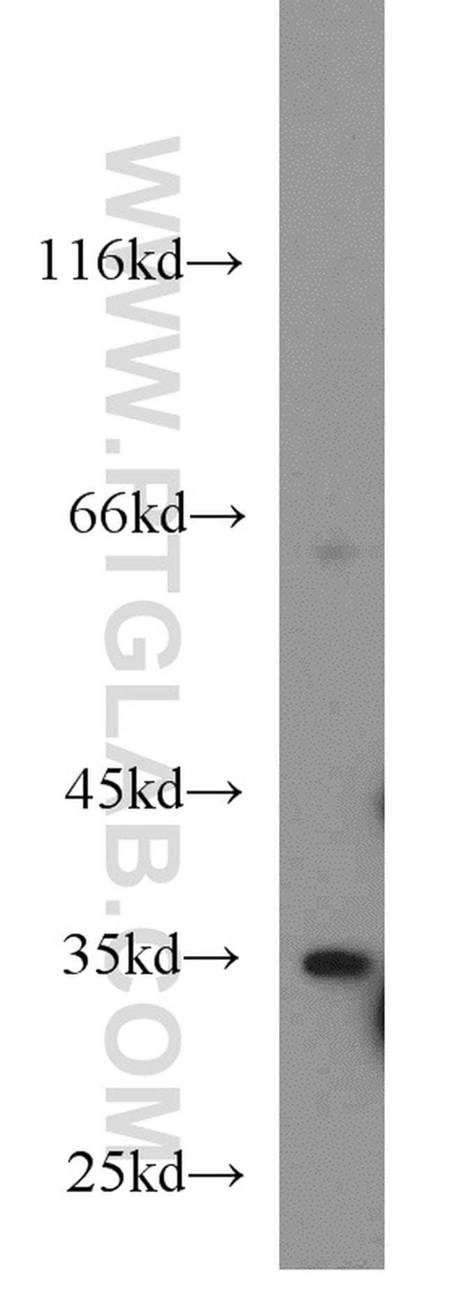 DARC Rabbit anti-Human, Mouse, Rat, Polyclonal, Proteintech 20 μL; Unconjugated Ver productos