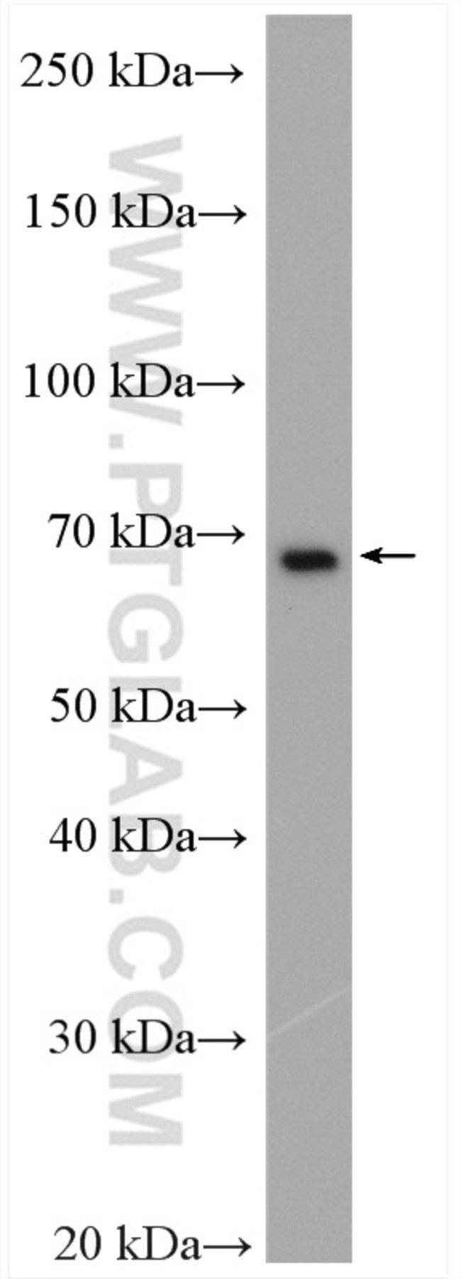 EWS Rabbit anti-Human, Mouse, Rat, Polyclonal, Proteintech 20 μL; Unconjugated voir les résultats