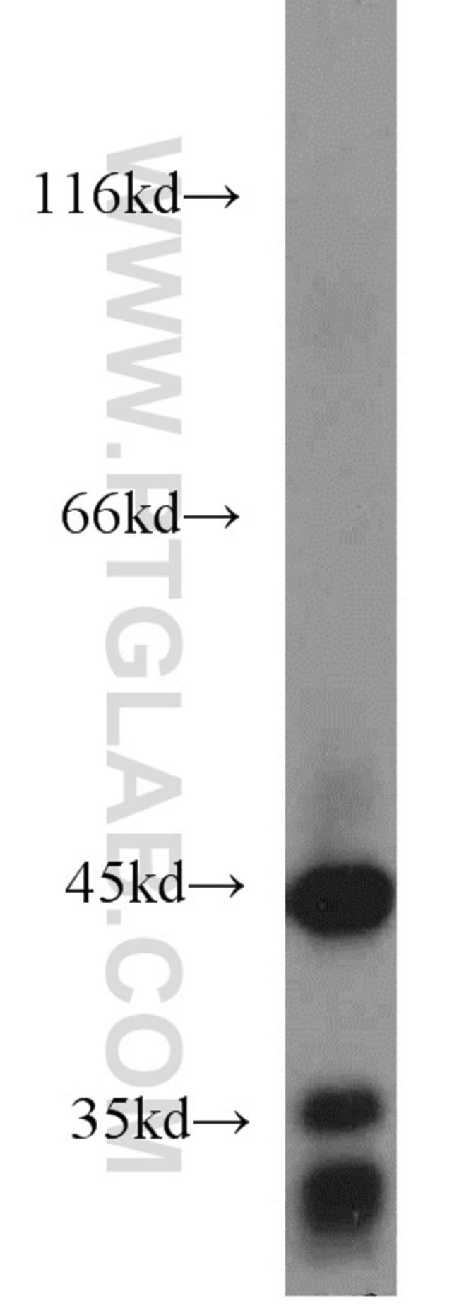 ACADM Rabbit anti-Human, Mouse, Rat, Polyclonal, Proteintech 20 μL; Unconjugated voir les résultats