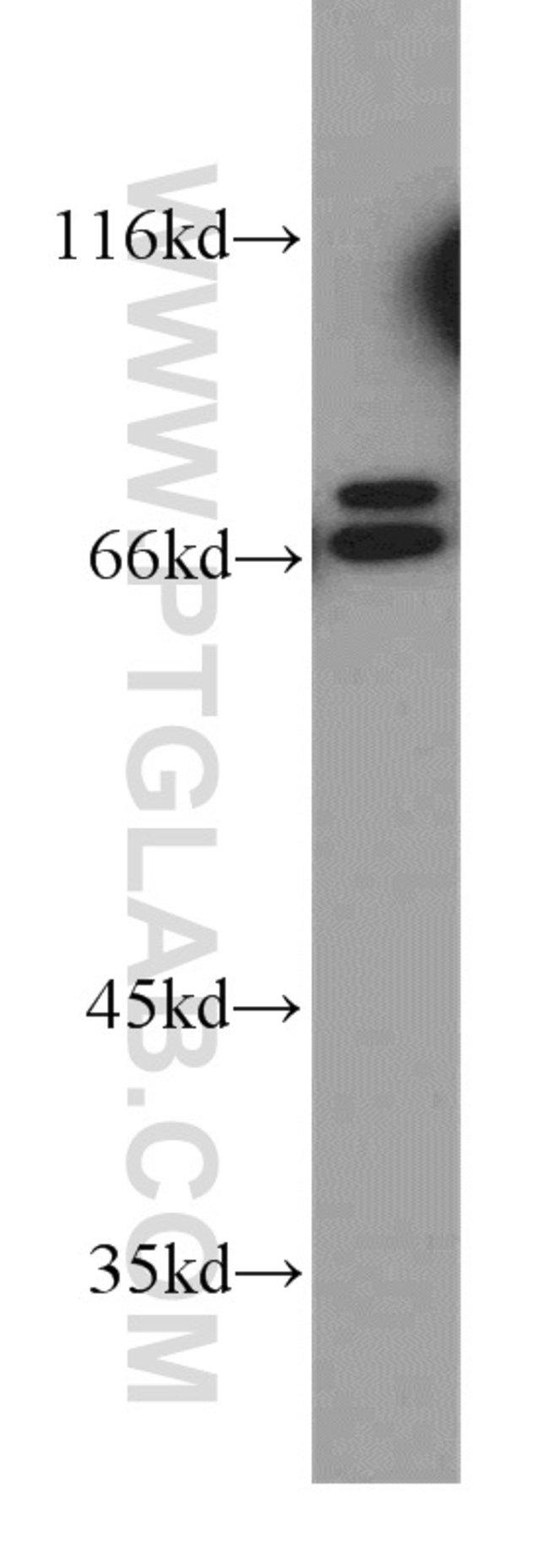 PLS1 Rabbit anti-Human, Mouse, Rat, Polyclonal, Proteintech 150 μL; Unconjugated Ver productos