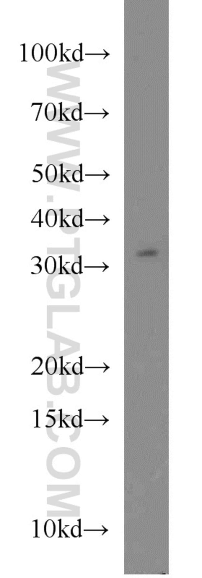 FOXE3 Rabbit anti-Human, Mouse, Polyclonal, Proteintech 20 μL; Unconjugated Ver productos