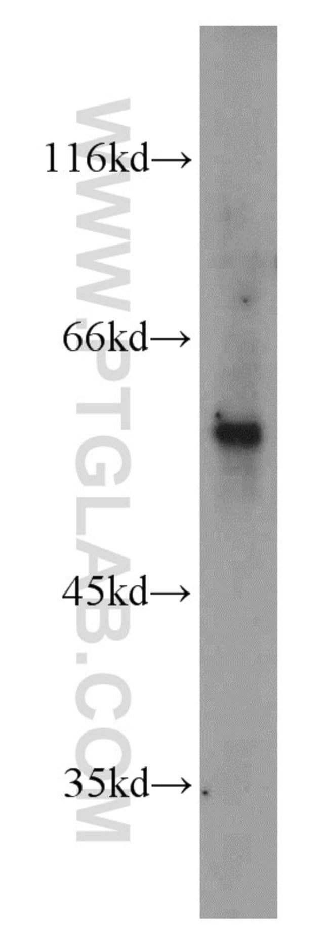 IMPDH2 Rabbit anti-Human, Mouse, Rat, Polyclonal, Proteintech 20 μL; Unconjugated Ver productos