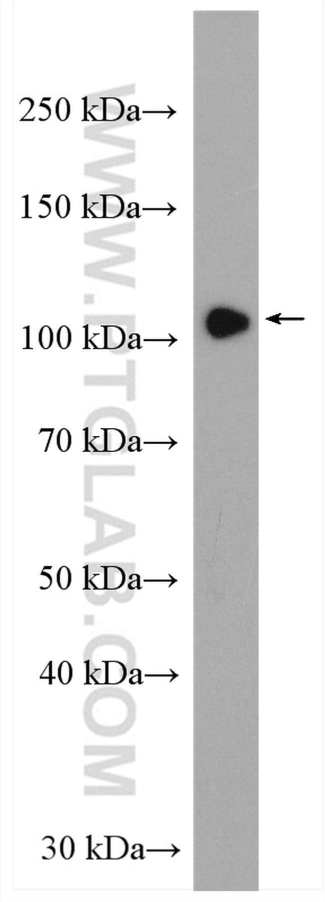 HIPK2 Rabbit anti-Human, Mouse, Polyclonal, Proteintech 20 μL; Unconjugated Ver productos