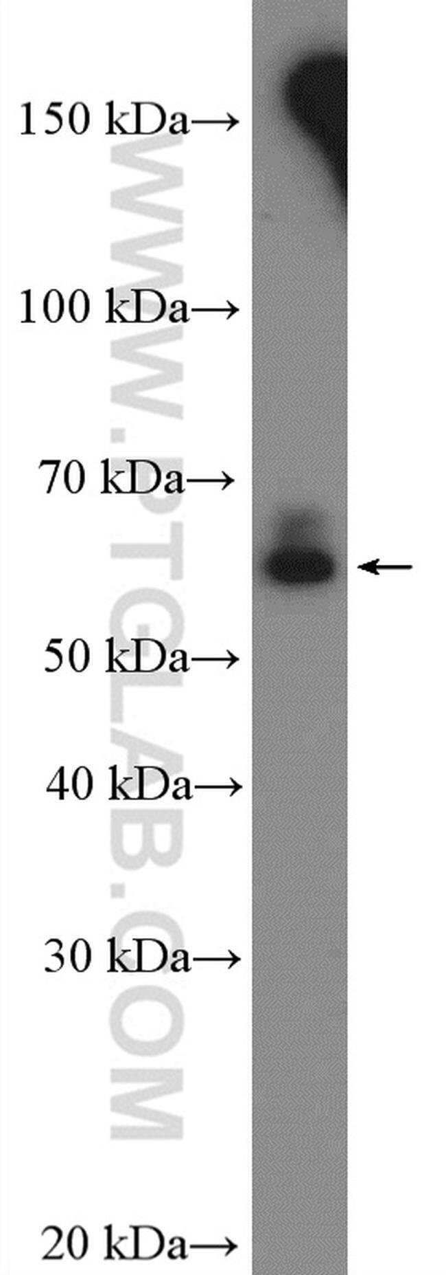 CYP3A7 Rabbit anti-Human, Mouse, Polyclonal, Proteintech 150 μL; Unconjugated Produkte