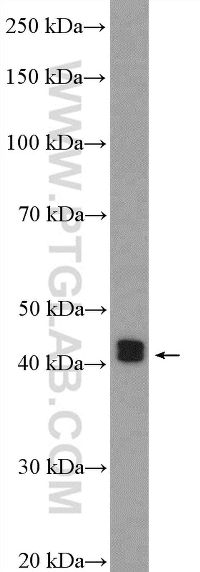ESR2 Beta-6 Rabbit anti-Human, Mouse, Polyclonal, Proteintech 150 μL; Unconjugated Produkte