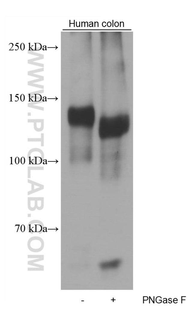 EMILIN1 Mouse anti-Human, Clone: 2A5C8, Proteintech 20 μL; Unconjugated Ver productos