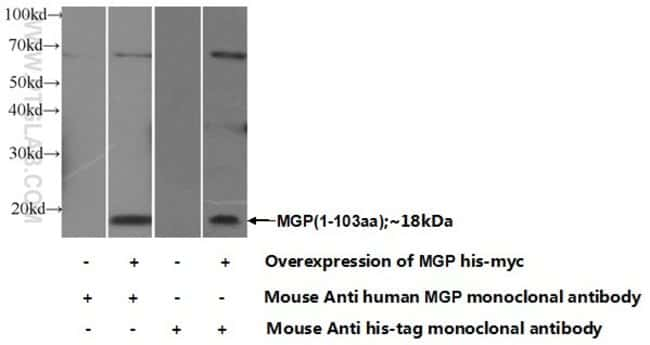 MGP Mouse anti-Human, Mouse, Clone: 1A1C3, Proteintech 150 μL; Unconjugated Produkte