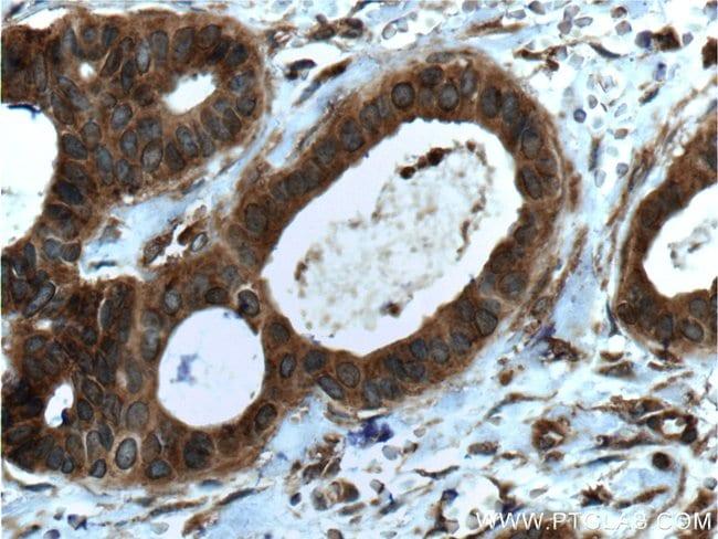 LGALS3BP Mouse anti-Human, Clone: 2D8E11, Proteintech 150 μL; Unconjugated Produkte