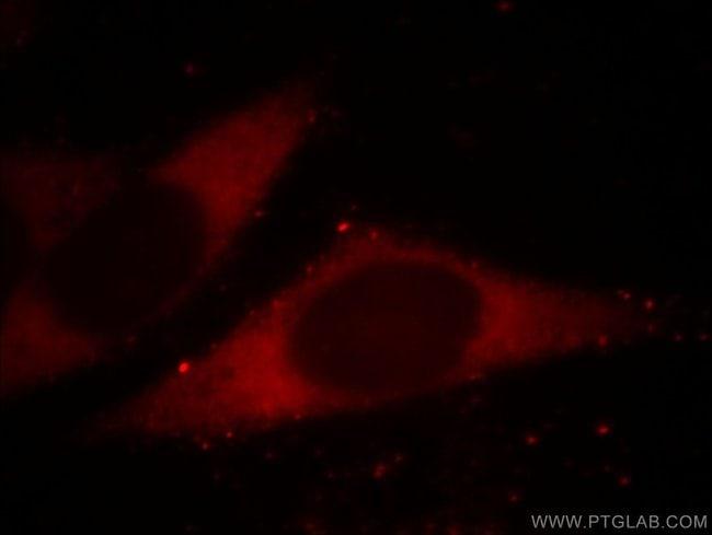 BORIS Mouse anti-Human, Mouse, Clone: 2B12E2, Proteintech 150 μL; Unconjugated Produkte