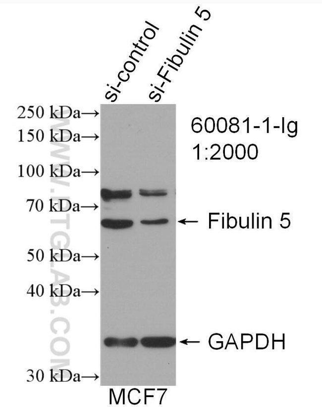 Fibulin 5 Mouse anti-Human, Mouse, Porcine, Rat, Clone: 2A5C8, Proteintech 20 μL; Unconjugated Ver productos