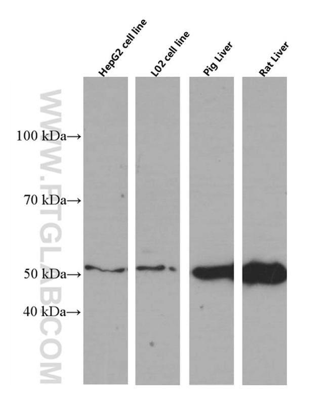 SERPINA10 Mouse anti-Human, Porcine, Rat, Clone: 5B3C9, Proteintech 20 μL; Unconjugated Produkte