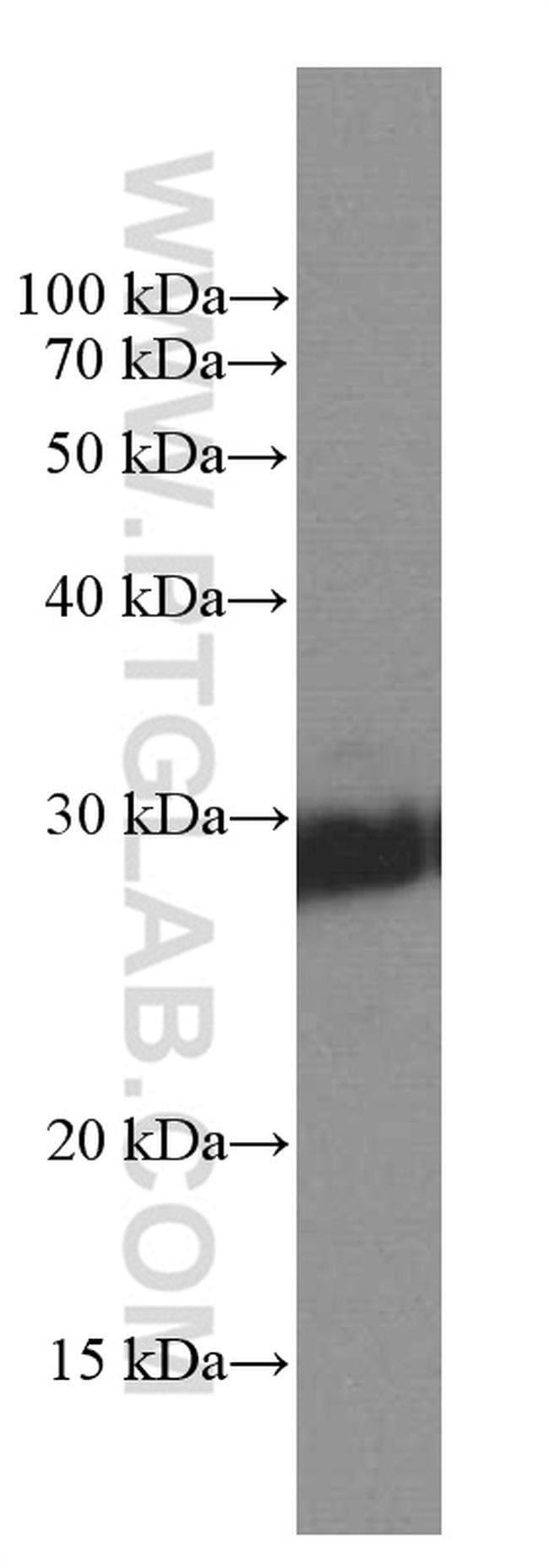 KCNIP4 Mouse anti-Human, Porcine, Rat, Clone: 5B1D12, Proteintech 150 μL; Unconjugated Ver productos